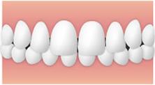 出っ歯(上顎前突-じょうがくぜんとつ)