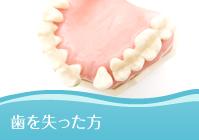 歯を失った方